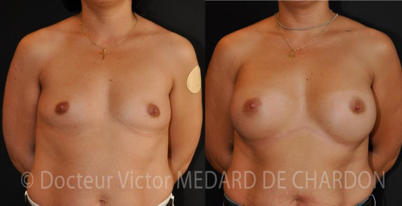 300 cc round breast implants dual plane axillary approach