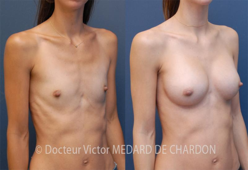 specialist-breast-implants-areolar-approach-cannes-nice