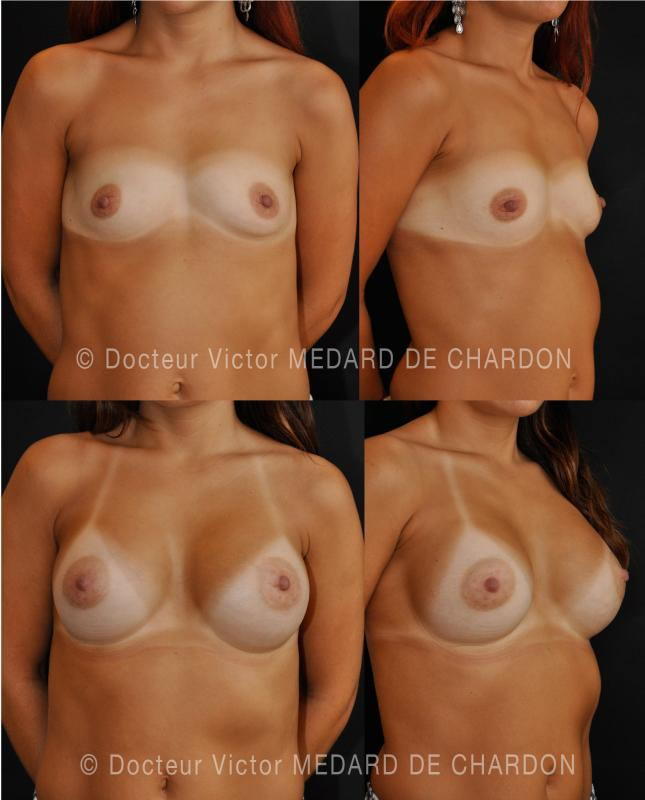 breast-implants-cannes