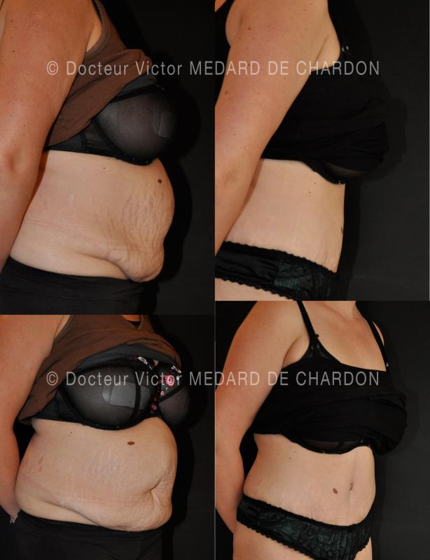 lipoaspiration-stomach-surgery-cannes-nice-antibes