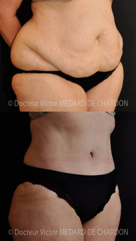 Abdominal apron and ring of excess fat on the stomach