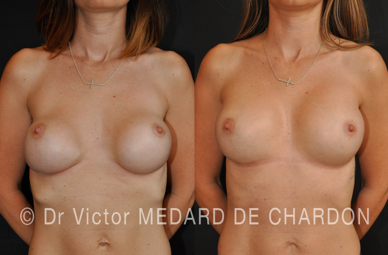 specialist-breast-augmentation