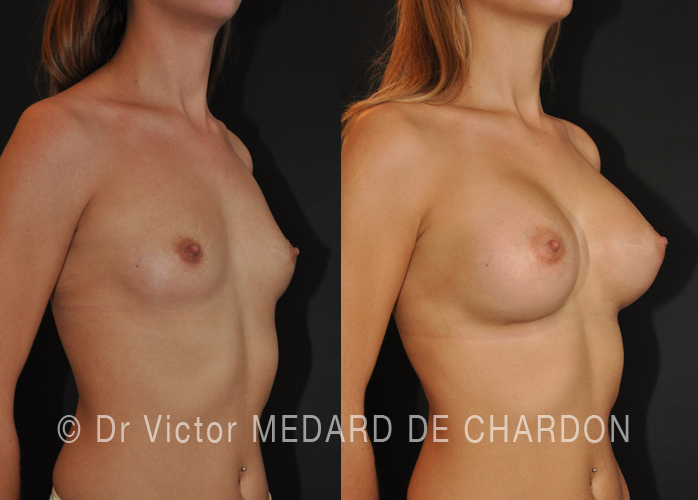 natural-result-breast-implants