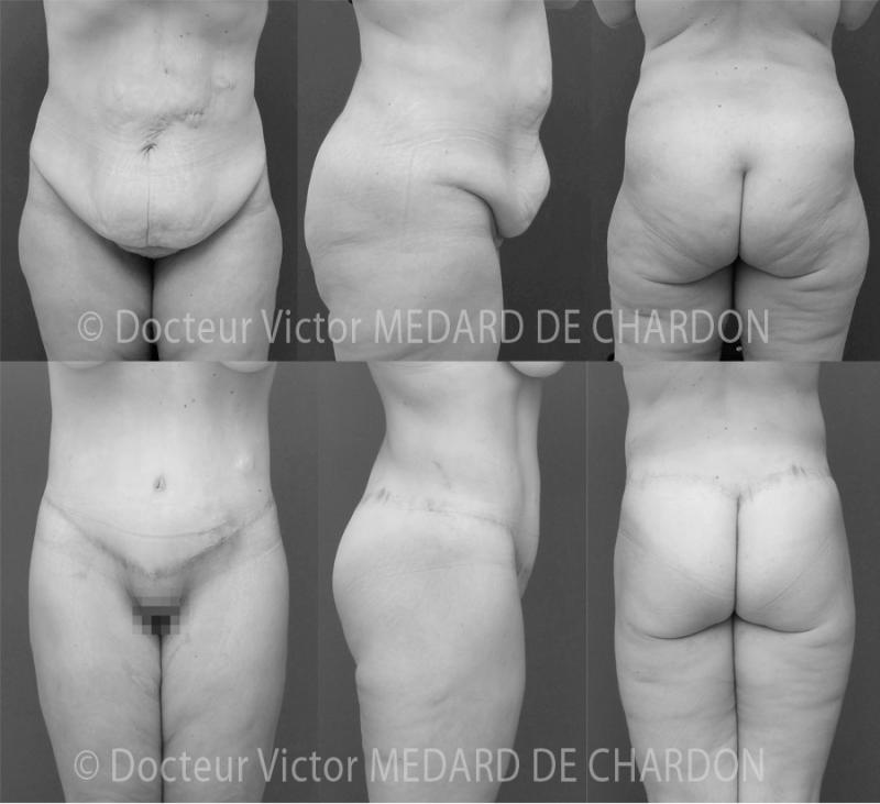 Body lift: high tension abdominoplasty, lipoaspiration of the flanks and saddlebags, buttock lift