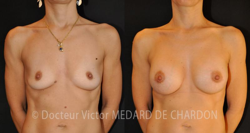 specialist-breast-implants-cannes-nice
