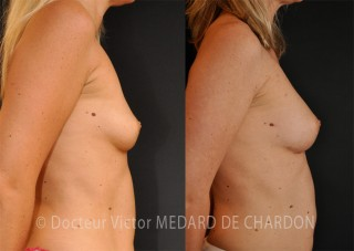 breast-augmentation-injection-fat-cannes