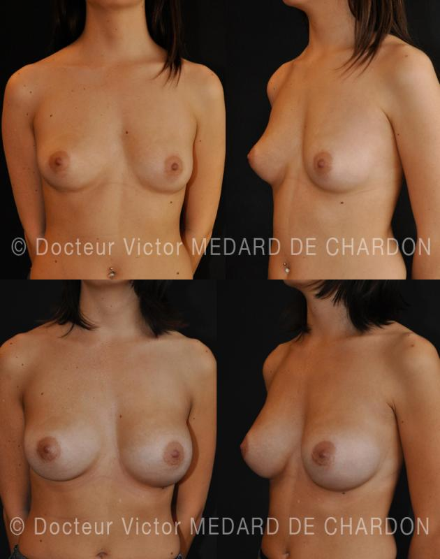 Breast augmentation for asymmetry with larger right breast