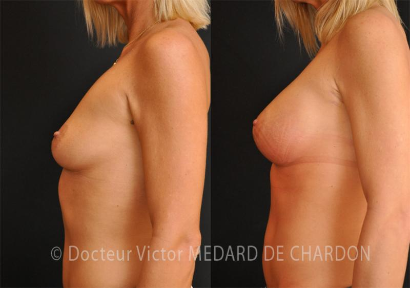 specialist-breast-implants-armpit-nice-cannes
