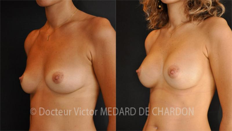 specialist-breast-augmentation-implants-armpit