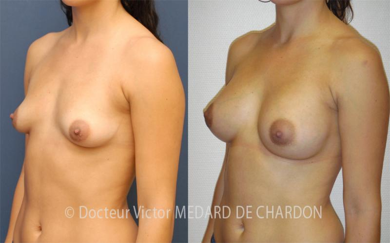 specialist-breast-augmentation-implants-areolas