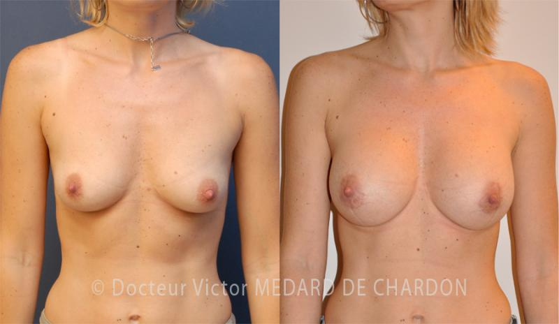specialist-breast-augmentation-implants-areolas-antibes