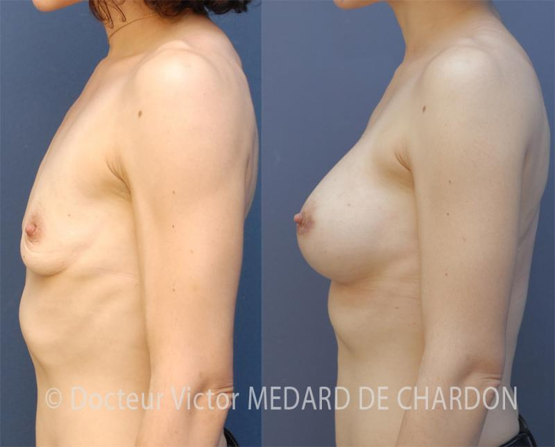 famous-surgeon-breast-augmentation-cannes-nice-antibes-monaco