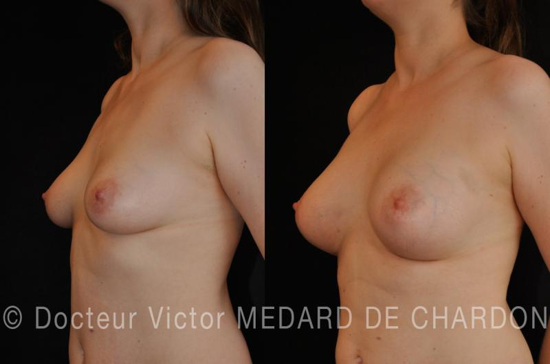 breast-increase-cannes-nice-monaco
