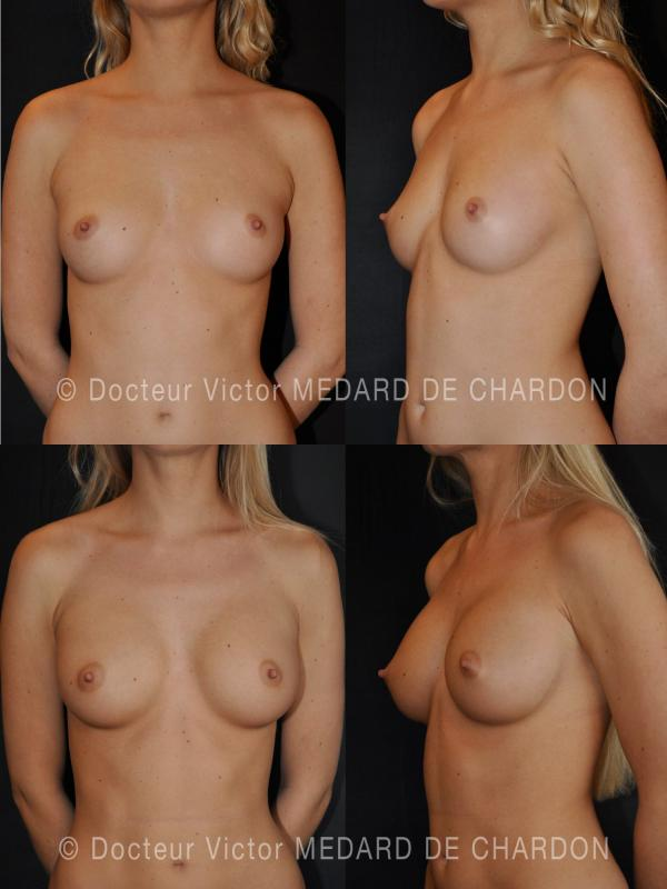 specialist-breast-implants-armpit-cannes