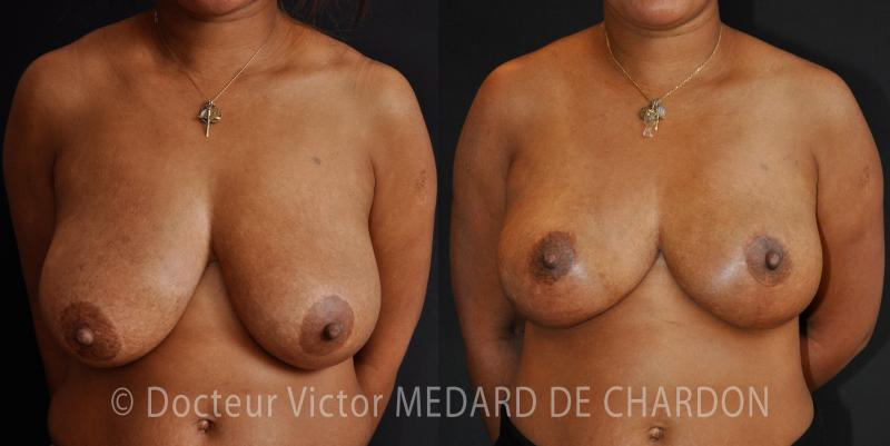 breast-diminution-83-06-riviera