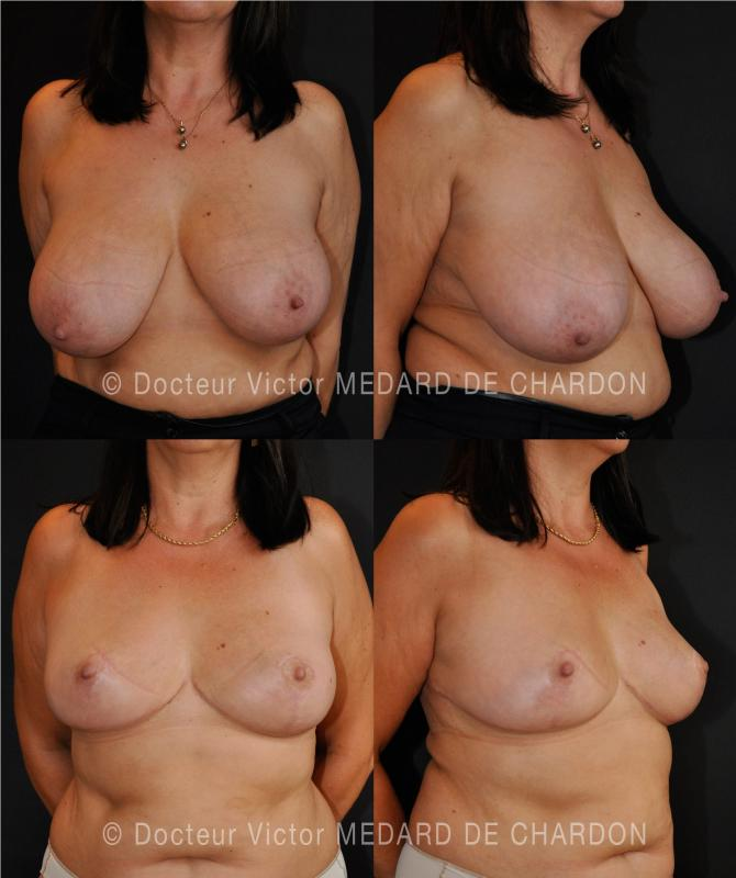specialist-breast-reduction