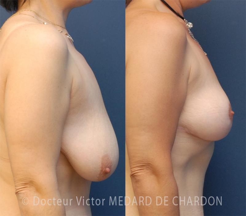 specialist-breast-reduction-riviera