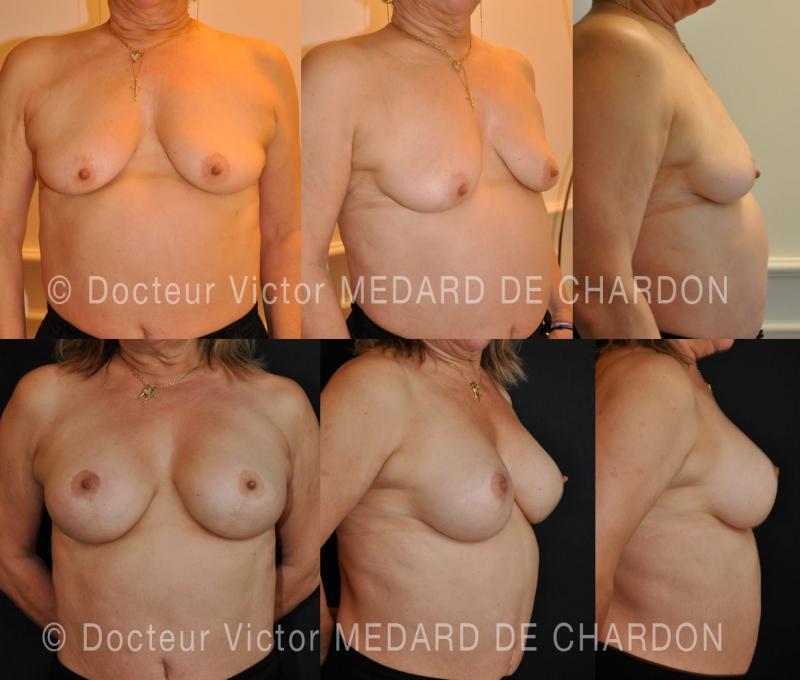 specialist-breast-ptosis-vertical-mastopexy