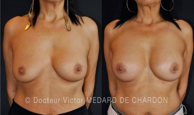 specialist-breast-augmentation-riviera
