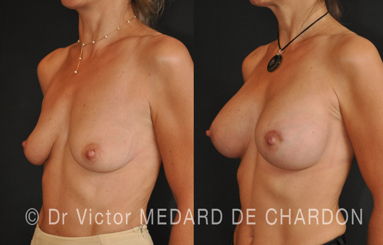 breasts-increase-without-scar-implants