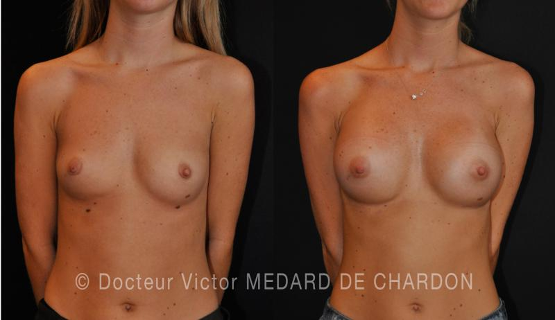 specialist-breast-implants-armpit-dual-plane