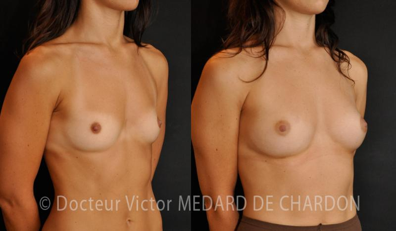 breast-augmentation-injection-fat