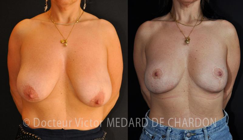 specialist-surgery-breast-var-frejus-cannes-nice