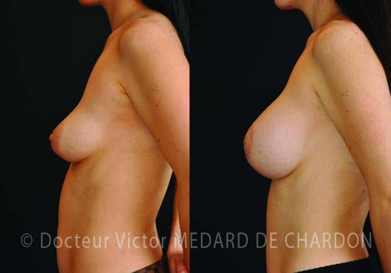 drooping-breasts-breast-lift-implants