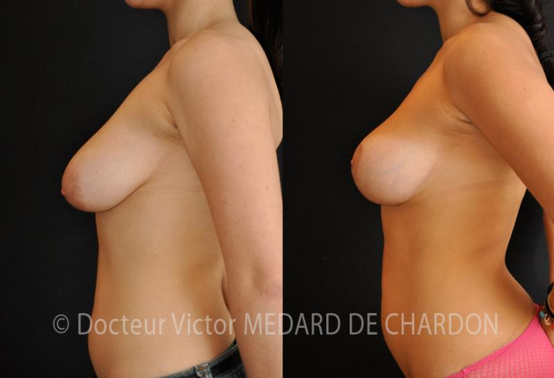 surgery-ptosis-breast-lift-nice-cannes-antibes-monaco