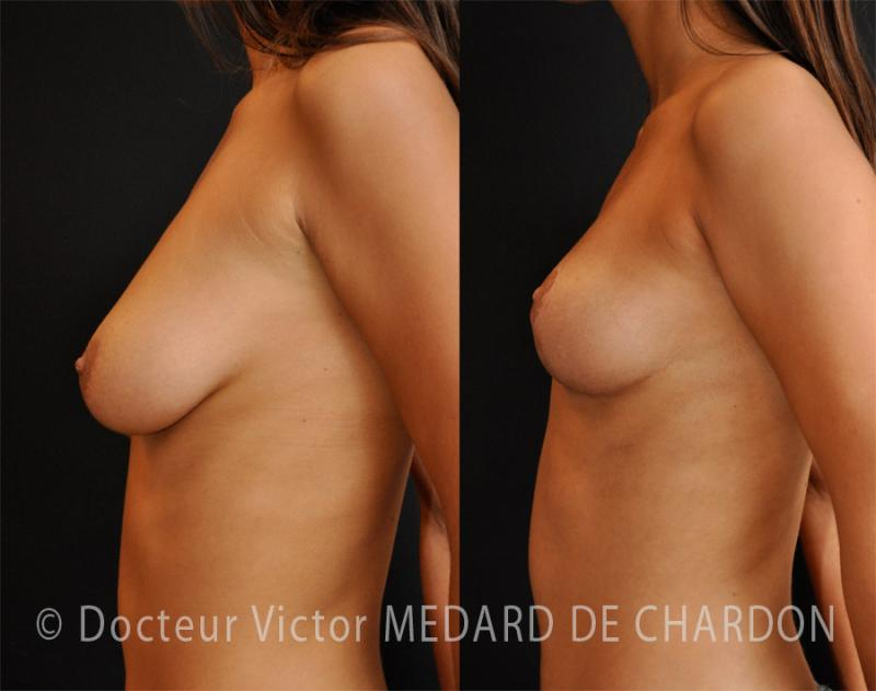 Breast ptosis (drooping breasts)