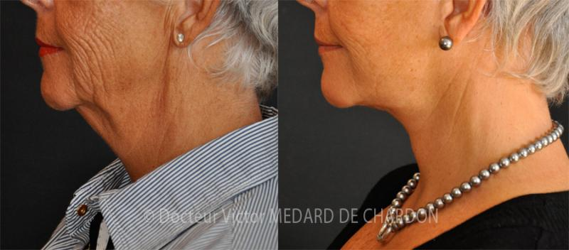 Cervicofacial lift (face and neck lift) with lipoaspiration of the neck (double chin)