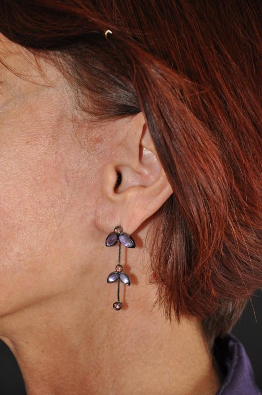 Cervicofacial lift scars