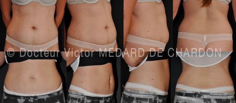 Circumferential stomach liposuction and mini-abdominoplasty