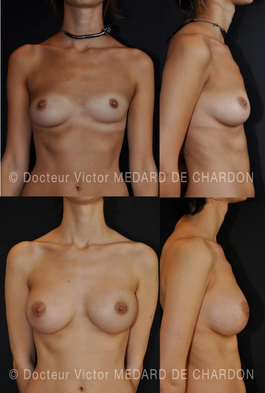 specialist-breast-implants-asymmetry