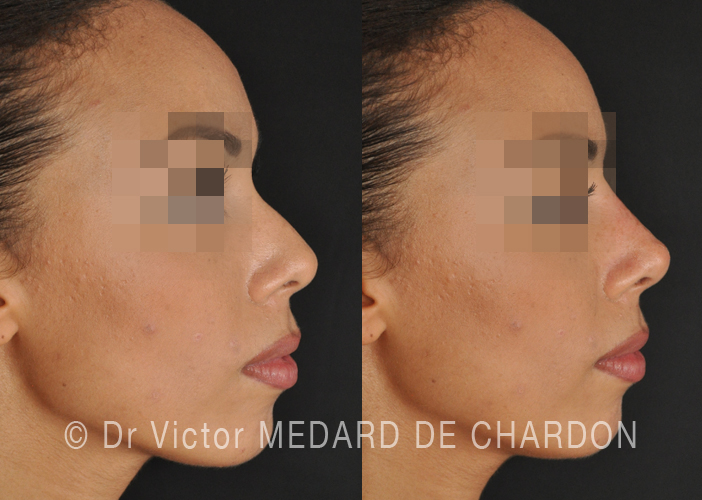 medical-rhinoplasty-riviera
