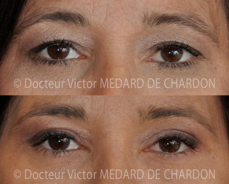 Aesthetic surgery on the upper eyelids and Botox