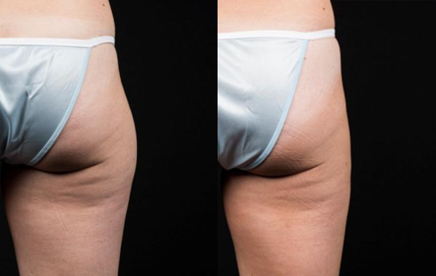 coolsculpting-thighs-saddlebags