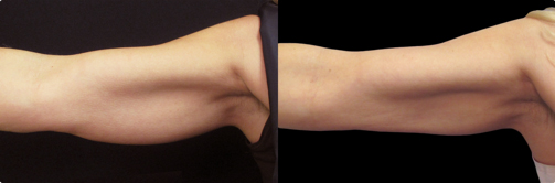 cryolipolysis-reduction-fat-arms