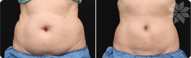 specialist-liposuction-without-surgery-coolsculpting-cryolipolysis-nice-cannes