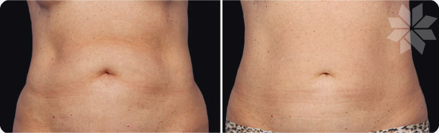 cryolipolysis-coolsculpting-stomach-fat-without-surgery-riviera