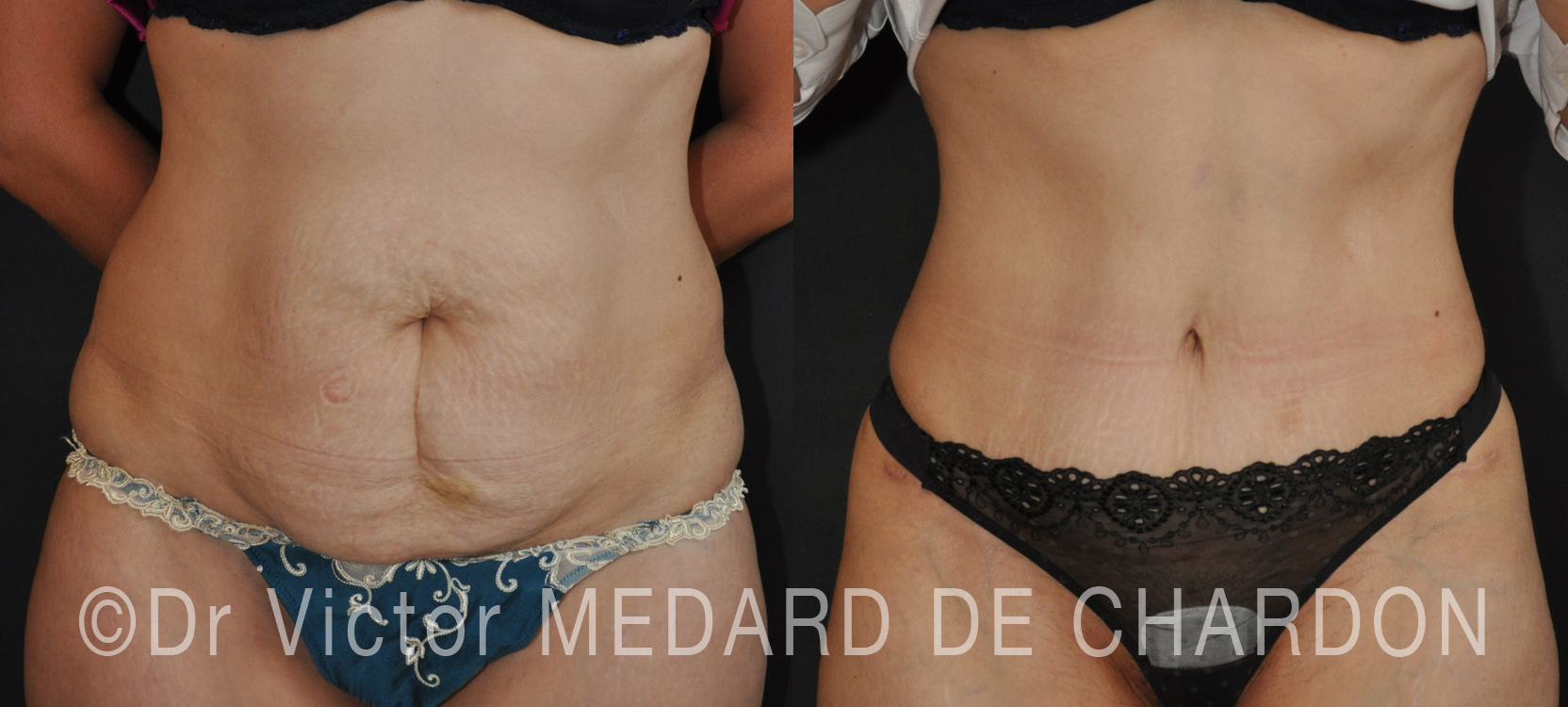expert-abdominoplasty-toulon