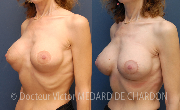 specialist-double-fold-breast-france-paris-marseille-nice
