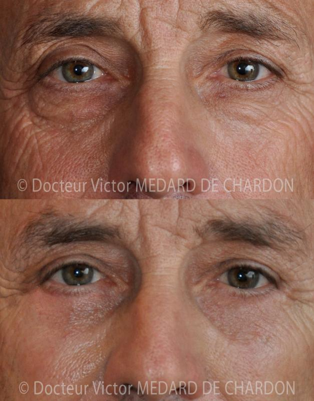 Eyelid surgery for excess skin and hollow shadows in men