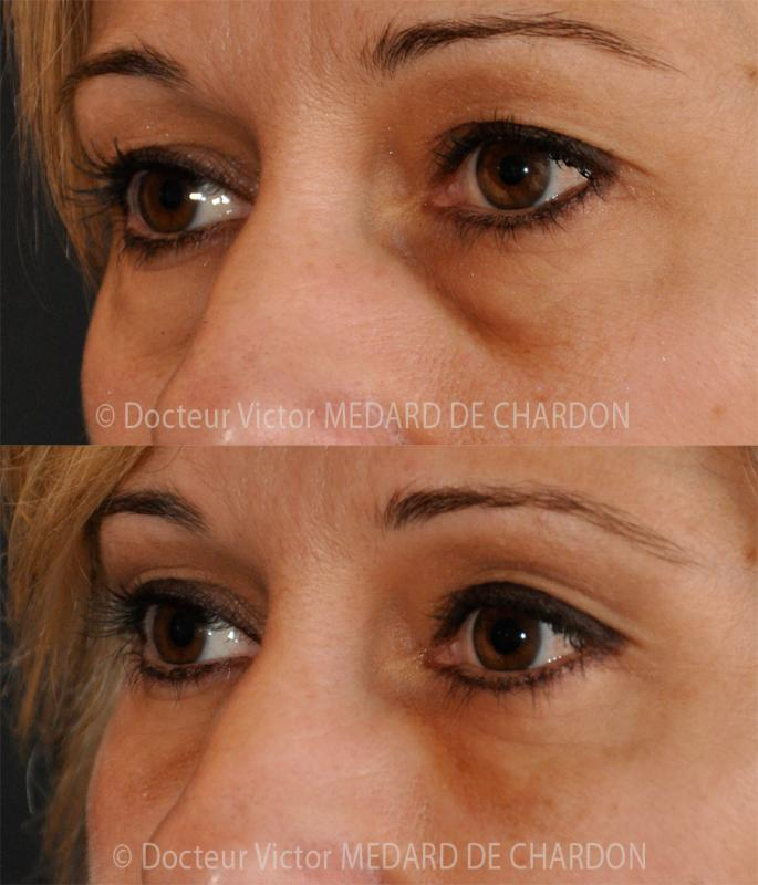 Eyelid surgery for excess skin under the eyes + dark shadows or hollows