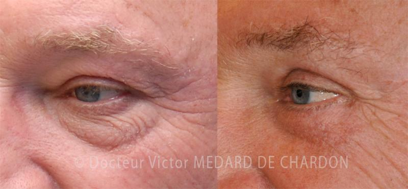 Eyelid surgery for excess skin under the eyes, hollows and dermatochalasis of the eyelids