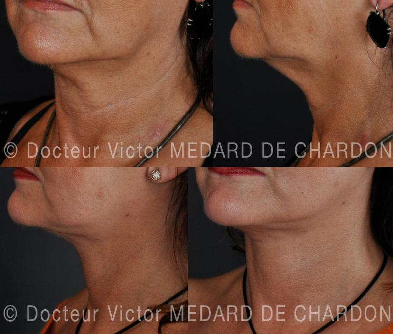 Face and neck lift: cervicofacial lift