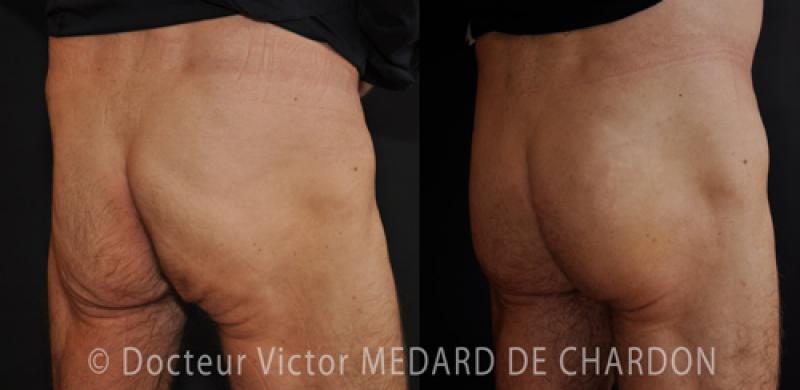 Flat buttocks