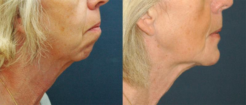 Genioplasty for receding chin