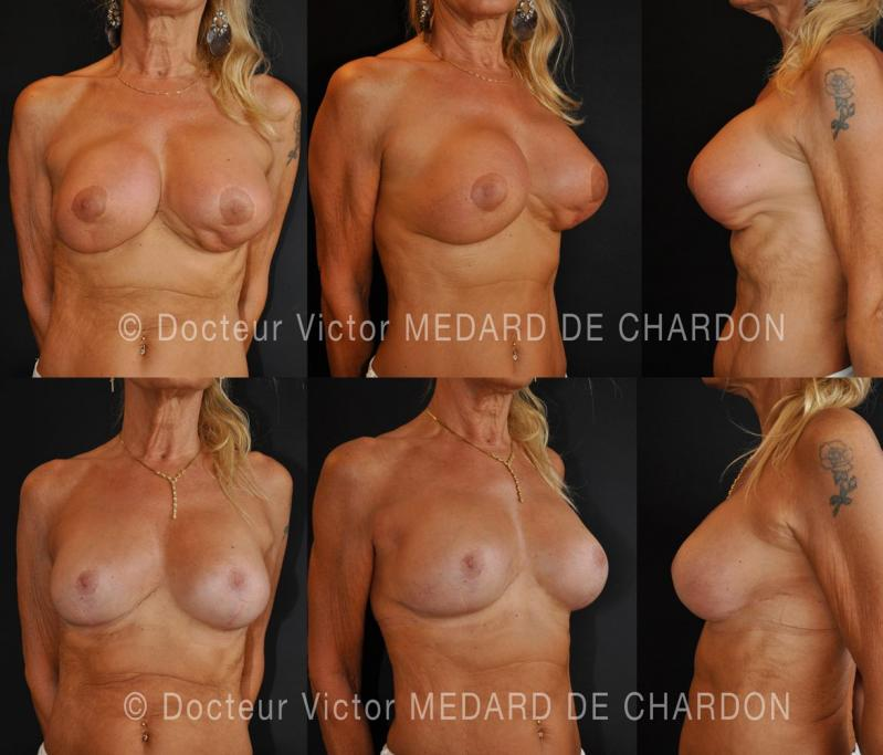 specialist-implants-polyurethane-cannes-nice