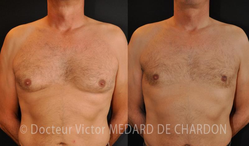 specialist-gynecomastia-adipomastia-breast-surgery-man
